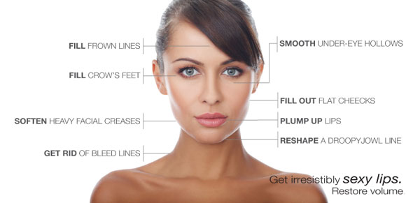 infographic showing injectable locations on a model's face
